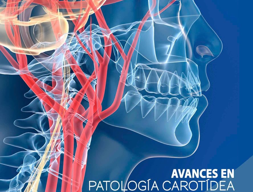 Course Advances in Carotid Pathology 2019